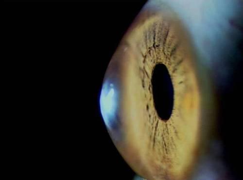 La degeneración macular puede provocar ceguera, que afecta a 200 millones de personas en todo el mundo.